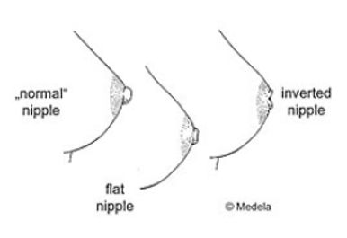 Types of nipples